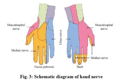 IJPS-hand-nerve