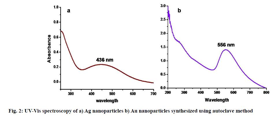 IJPS-spectroscopy