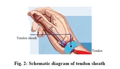 IJPS-tendon-sheath