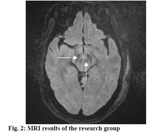 IJPS-MRI-results