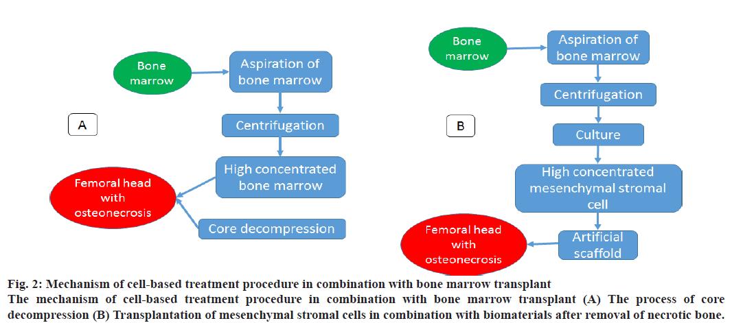 IJPS-Mechanism