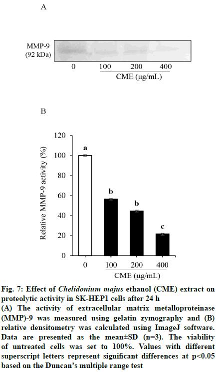 IJPS-gelatin-zymography