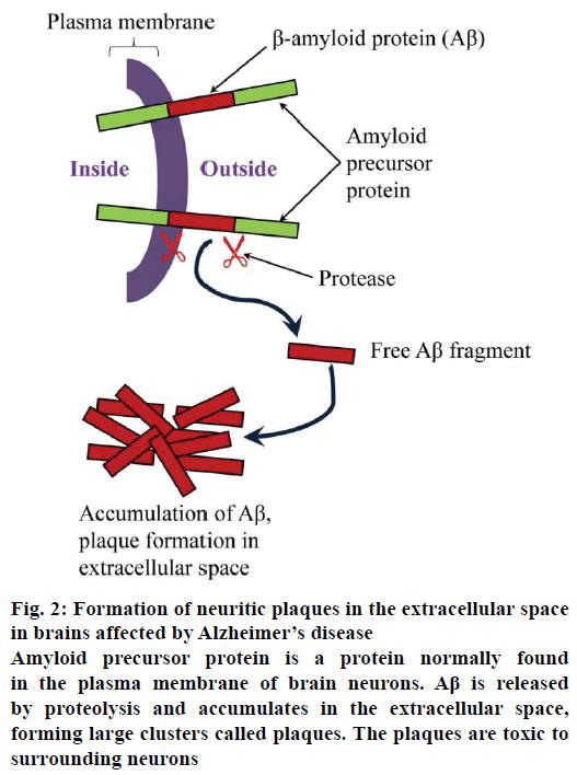 IJPS-neuritic-plaques