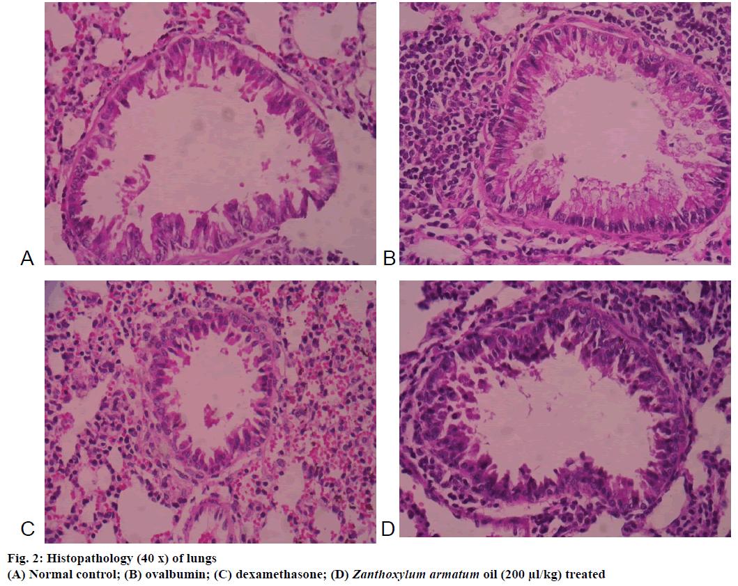 IJPS-ovalbumin-dexamethasone