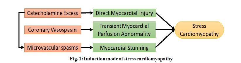 IJPS-stress-cardiomyopathy