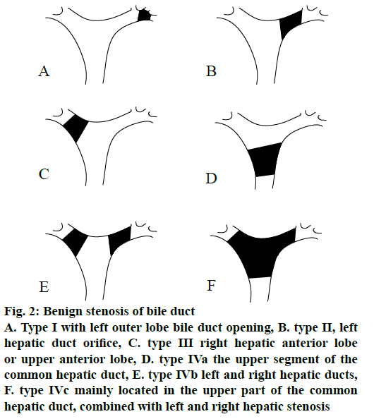 ijps-bile-duct