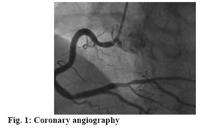 ijpsonline-angiography